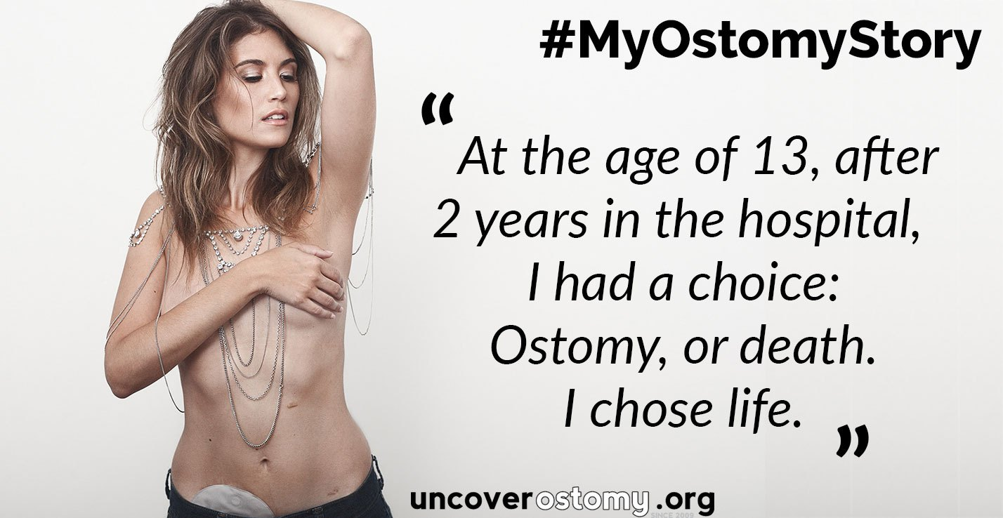 uncover-ostomy-wod