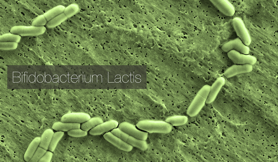 Bifidobacterium Lactis - Why Use Metagenics UltraFlora Control for Weight Management - InnerGood.ca Canada