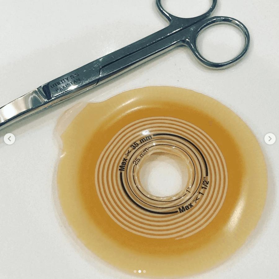 ostomy flange application tip 1